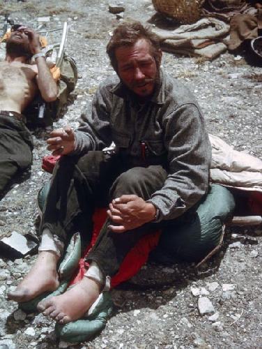 Барри Бишоп (Barry Bishop) с обмороженными пальцами после покорения Эвереста