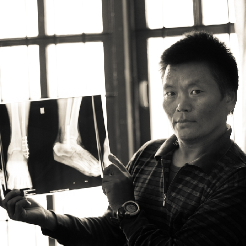 рентгеновский снимок поврежденной лодыжки шерпы Lhakpa Rangduk