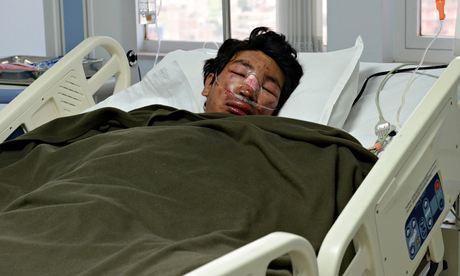 Один из выживших шерп в лавине 18 апреля 2014 года. Фото из больницы Катманду