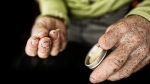 Завершение очередного дня восхождения. Томми Колдвелл (Tommy Caldwell) смазывает увлажняющей жидкостью пальцы. Спустя 4 часа сна процедура повторяется Самое сложное – это поддерживать баланс между увлажненностью кожи и ее сухостью для лучшего сцепления со скалой. Если руки станут слишком сухими, то кожа может стать «скользкой» и удерживать микроскопические зацепки будет невозможно.   Невероятно думать об этом, но кожа на пальцах может стать решающим фактором успеха или неудачи. Я перенастроил будильник, чтобы каждые 4 часа наносить лосьон на руки».  После скалолазания мы наносим мазь на кончики пальцев. Масло виноградных косточек, пчелиный воск и витамин Е всем известны своими маленькими чудесами, которые они способны творить с  нашей кожей. Но острый гранит безжалостен к коже. И тогда приходиться пользоваться пластырем.  Томми Колдуэлл потерял левый указательный палец в 2001 году, врачи планировали пришить фалангу пальца, но не гарантировали ее нормальной работы, поэтому Томми выбрал ампутацию. Photo: Corey Rich/Aurora Photos