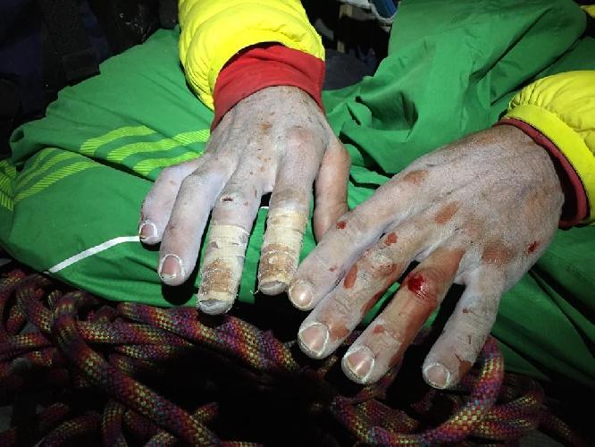 Пальцы Кевина Йоргенсона при прохождении 15-ой веревки