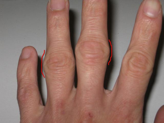 Если болят косточки на пальцах рук