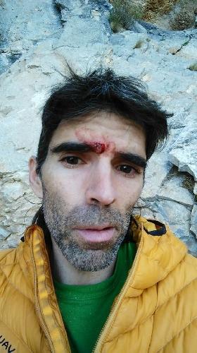 """Дани Андрада (Dani Andrada) после травмы на маршруте """"Chilam Balam"""""""