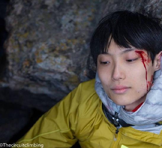 Травмированный Джангвон Чон (Jongwon Chon)