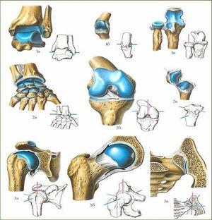 Что делать, если ваши связки и суставы болят?