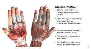 Восстановление при травме коллатеральной связки пальца.