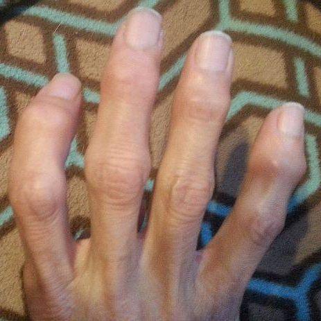 Достигнув уровня сложности 7c+ бросила лазить на 4 года из-за ревматоидного артрита