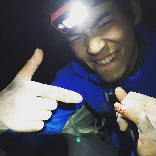 "Кейта Кураками (Keita Kurakami) с травмированным пальцем на маршруте «The Nose» на Эль-Капитане на отметке "" Great Roof"". Фото Keita Kurakami"