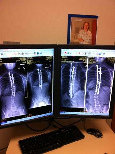 Снимок позвоночника Кайры после операции