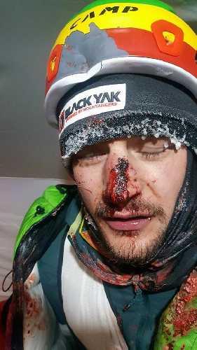 Травмированный Адам Белецкий, 7 февраля 2018 года