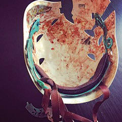 Анри Руммо: Однажды, во время восхождения в Роки-Маунтин (Колорадо, США) я внезапно потерял сознание; очнулся я уже в больнице со сломанной шеей и прололмленной в камнепаде головой. Фото climbing . com