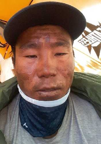 Нима Шеринг Шерпа (Nima Tshering Sherpa) после спасработ на Аннапурне