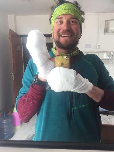 Андрей Вергелес в больнице Катманду, после эвакуации с восьмитысячника Лхоцзе. Фото Андрей Вергелес