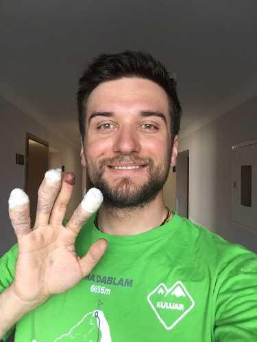Андрей Вергелес после процедуры лечения обморожений