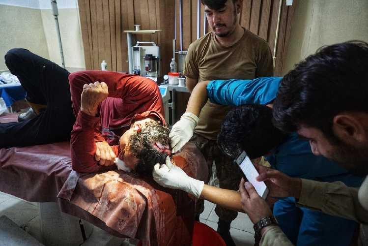 Алистер Джеймс Суинтон (Alastair James Swinton) в больнице в Пакистане после аварии на Койо-Зом  (Koyo Zum, 6872 метра). Фото Tom Livingstone