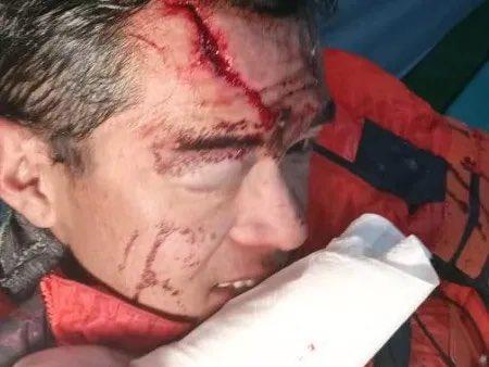 травмированный Джанбу Шерпа (Jangbu Sherpa)