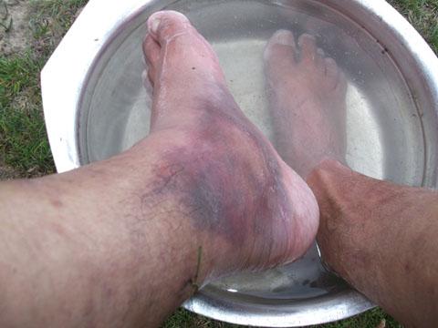 обмороженные ноги Lhakpa Rangduk