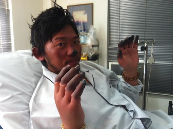 Kuriki Nobukazu: в госпитале в Катманду, после обморожений полученных на Эвересте