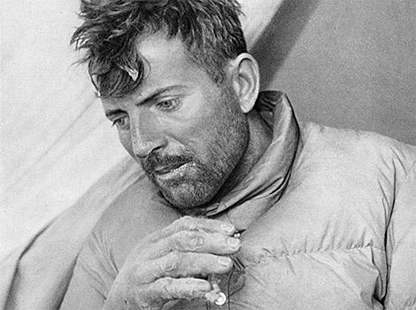 Морис Эрцог (Maurice Herzog) с обмороженными пальцами на Аннапурне 1950 год